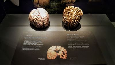 Bodyworlds Exhibition Shows Alzheimer Effects